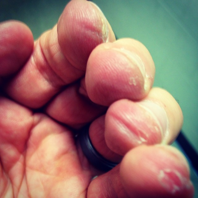 how to deal with finger pain guitar for your. Black Bedroom Furniture Sets. Home Design Ideas